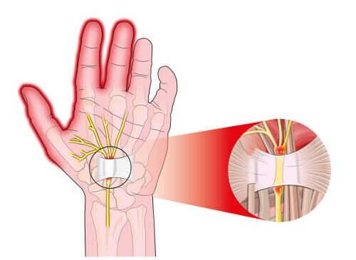 Karpal Tünel Sendromu Ameliyatı ve Tedavisi